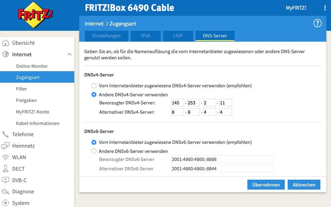 DNS-Server-Fritzbox_2